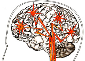 Brain Plasticity - Chronic Pain Visualisation Picture Drawing