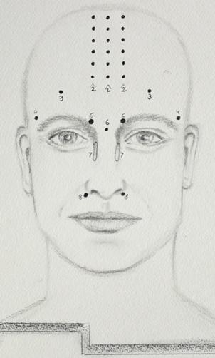 Headache Accupressure Points